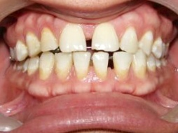 veneer treatment India