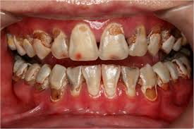 Tooth Decay In Young Children
