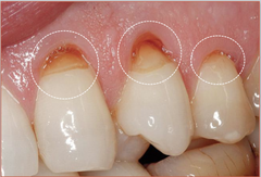 dental-abrasion