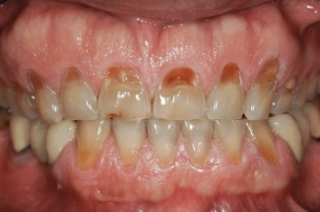dental-erosion-2