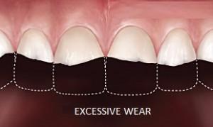 excessive-wear