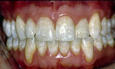 White spots or brownish-grey lines due to fluorosis