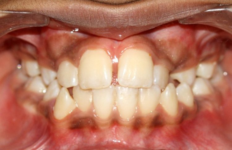 dental delhi