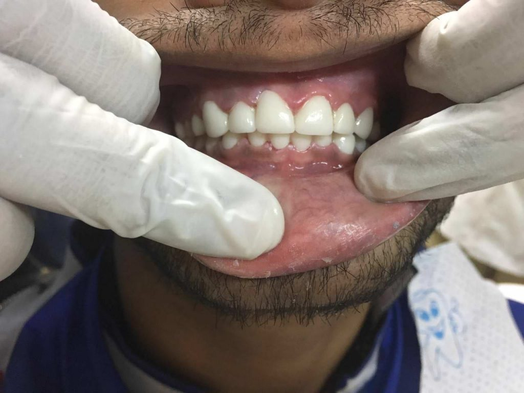 SmileMakeover-8