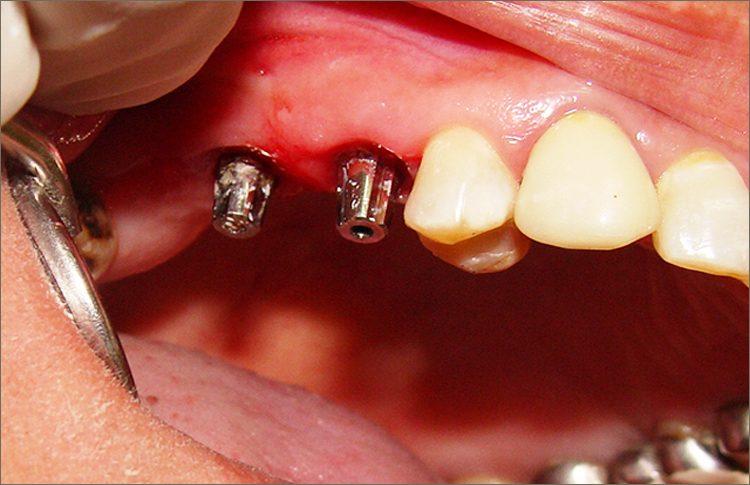 implant_case_7