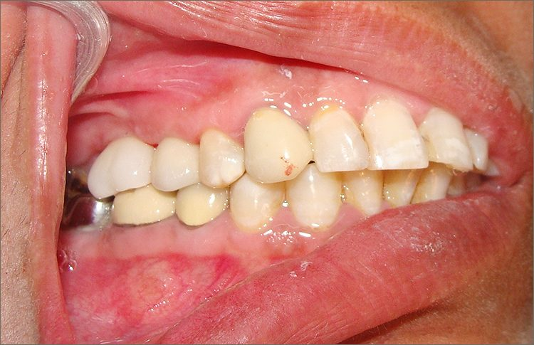 implant_case_8
