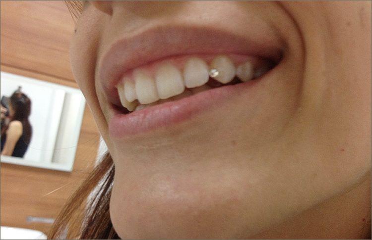 tooth diamond 1