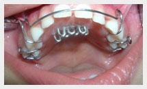 Dentist in Delhi