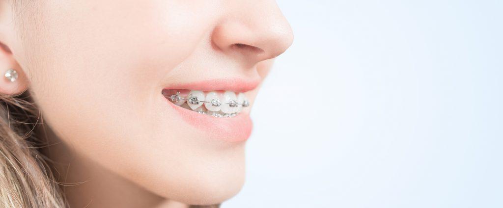 Innerpage-Metal-braces