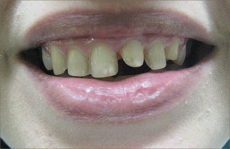 SmileMakeover-11