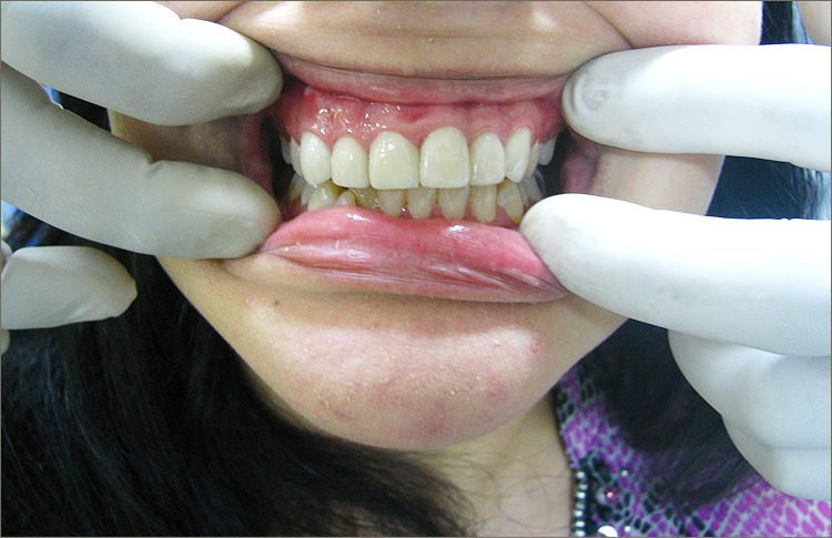 SmileMakeover-12