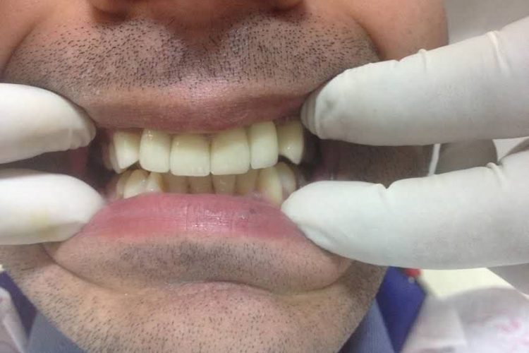 SmileMakeover-2