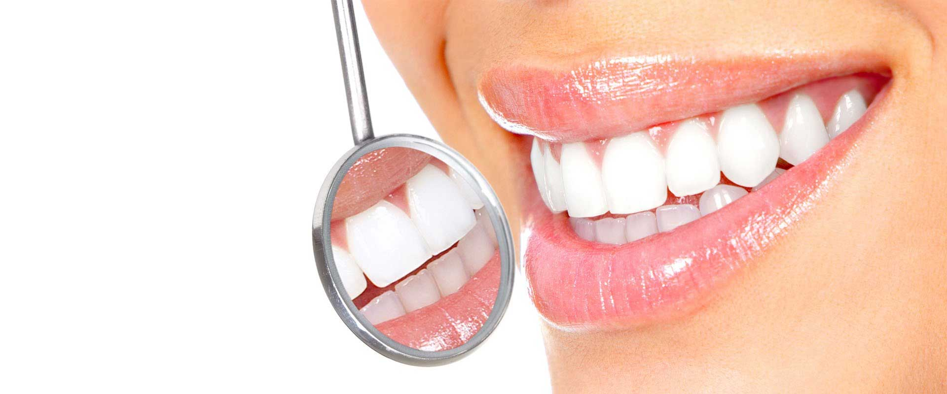 This is why professional dental cleaning is important