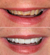 dental-smile