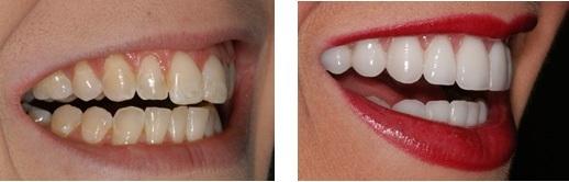Smile-makeover-dental