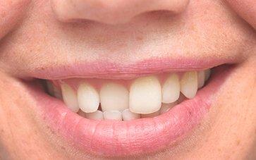 Dentists in Delhi