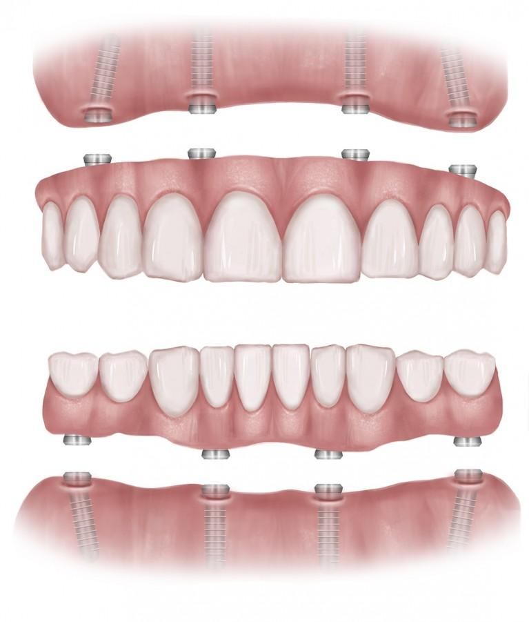 All on 4 implants - blog image