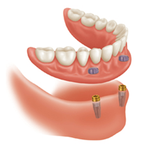 Implant-supported dentures - blog image