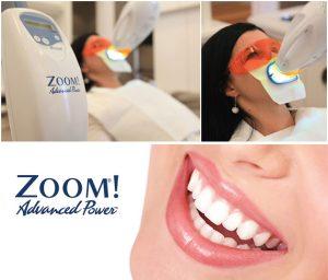 Zoom Teeth Whitening Treatment