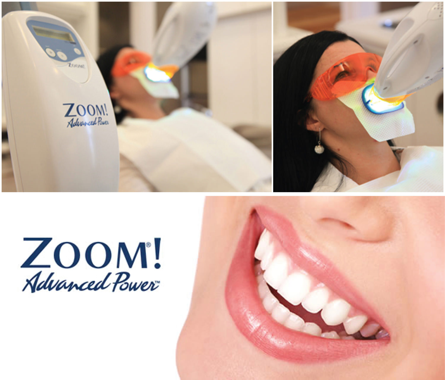 Zoom Teeth Whitening Treatment