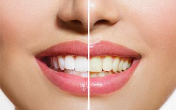 Teeth-Staining-Blog-Image