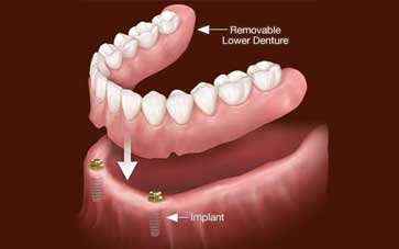 Implant-Supported-Dentures-Blog-Image-2_20201126