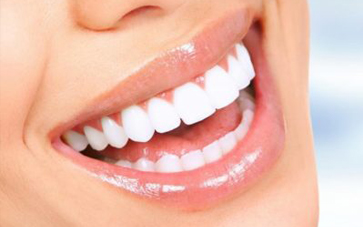 Porcelain VS Composite Veneers
