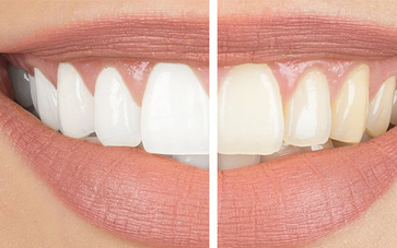Teeth Whitening - Smile Delhi