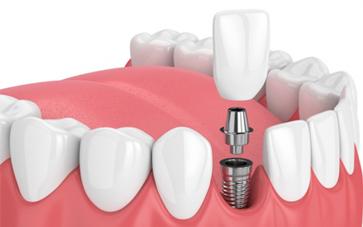 Dental Implants - Smile Delhi