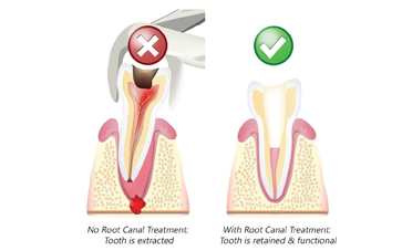 Successful Root Canal Treatment